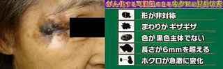 skin_cancer_hokuro.jpg